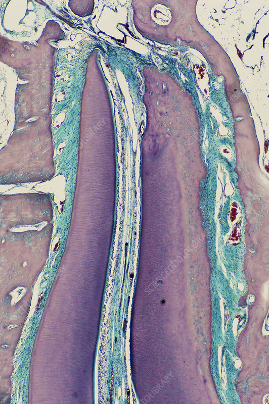 Developing Tooth, LM