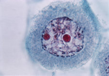 LM of Meiosis in Pollen Mother Cell - 2