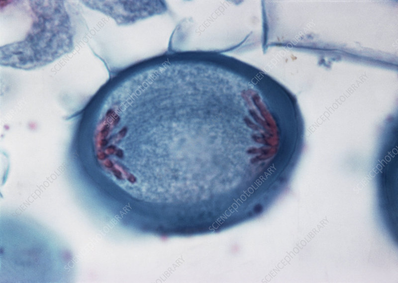 LM of Meiosis in Pollen Mother Cell - 4