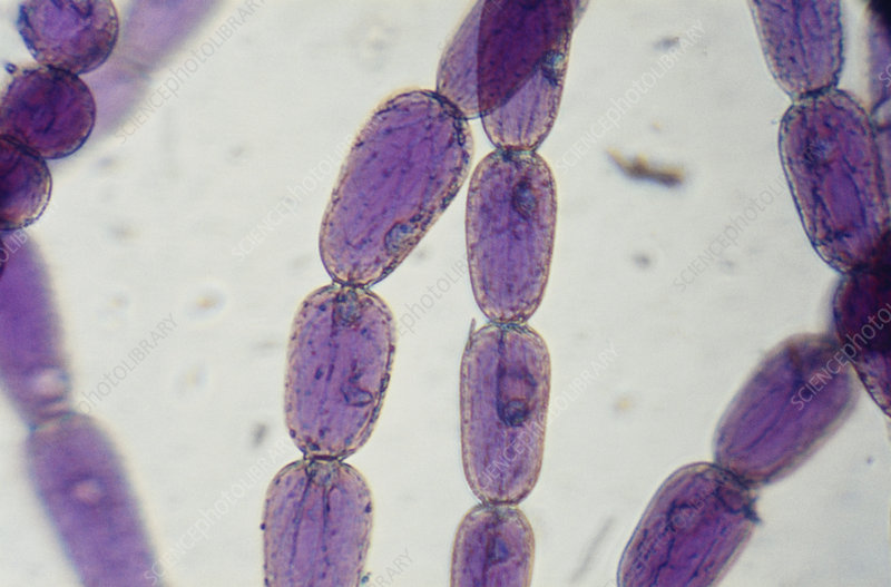 LM of Staminal Hair Cells in Tradescantia