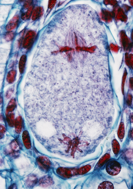LM of Ovary for Young Ovules in Lilium