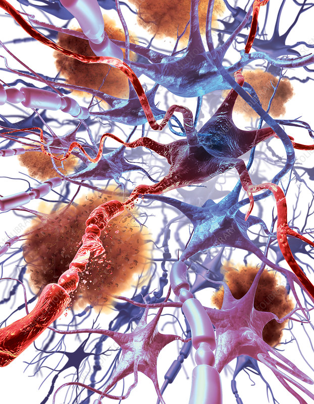 Neuronal Apoptosis In Alzheimer's Disease