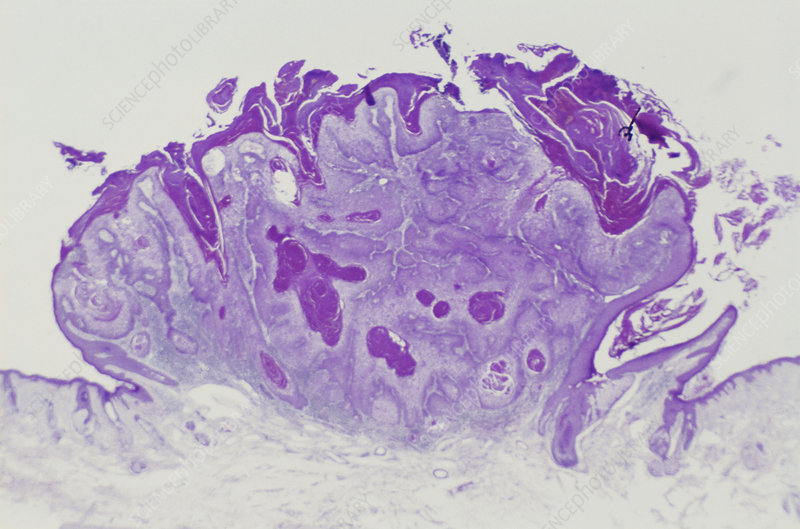 Invasive Squamous Carcinoma (LM)
