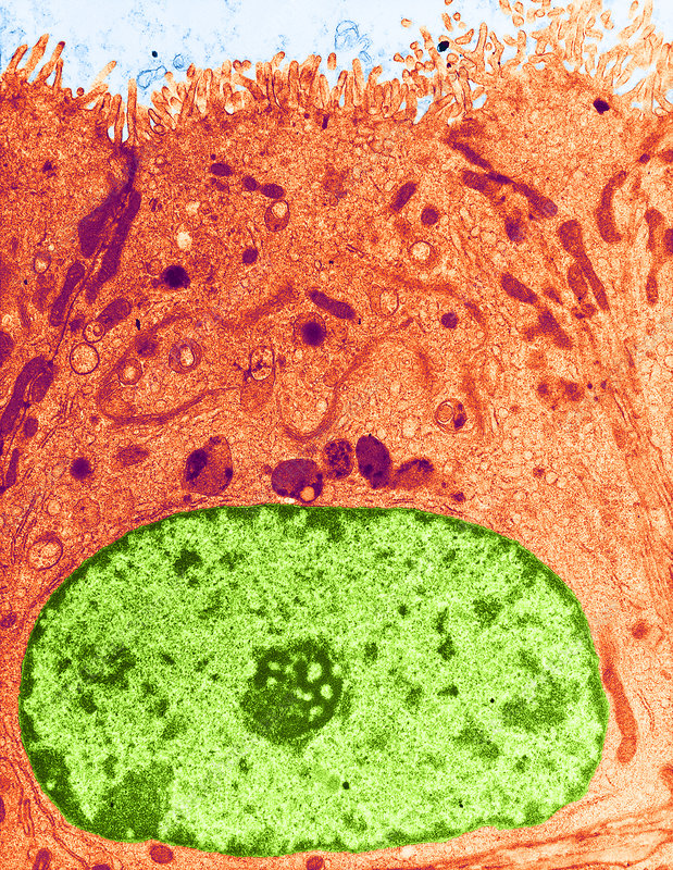 Epithelial Cell, TEM