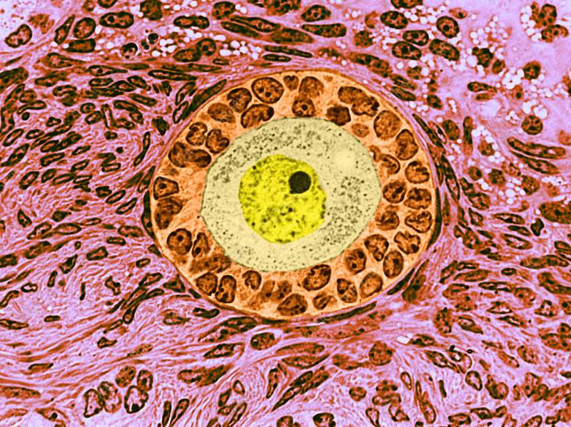 Follicle from Ovary, LM