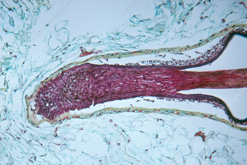 Human hair follicle, LM