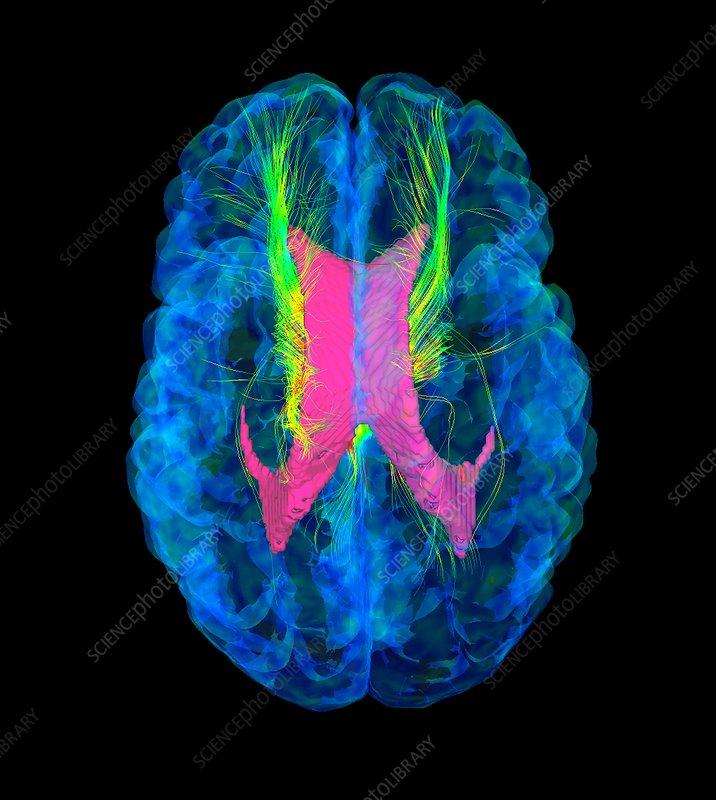 Brain fibres, DTI MRI scan