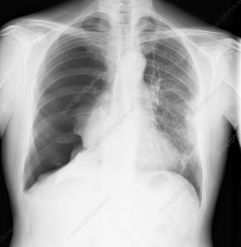 Pneumothorax, X-ray