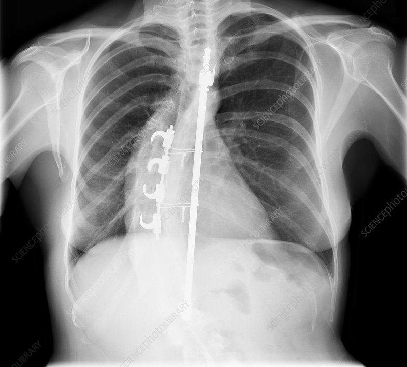 Scoliosis treatment, X-ray