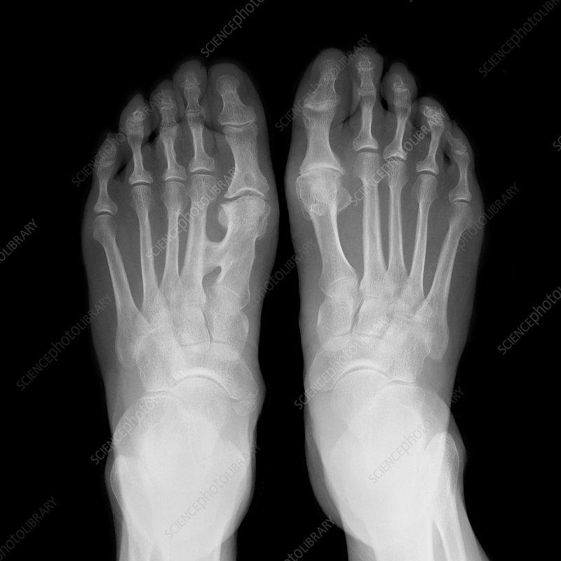 Fused metatarsals, X-ray