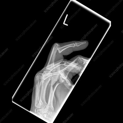 Dislocated finger, X-ray