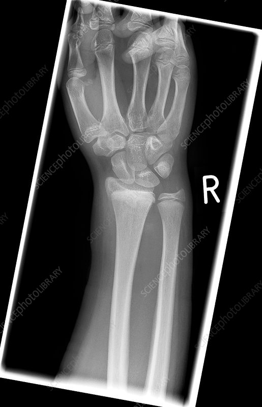 Salter Harris fracture, X-ray