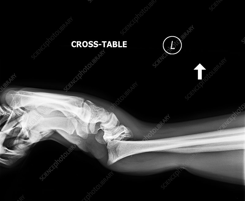 Dislocated wrist, X-ray