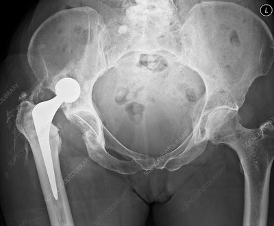 Dislocated hip replacement, X-ray