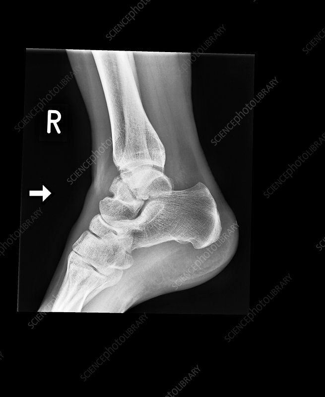 Ankle bone fracture, X-ray