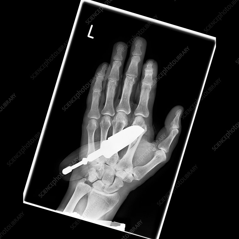 Knife in hand, X-ray