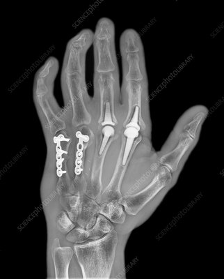 Knuckle replacement, X-ray