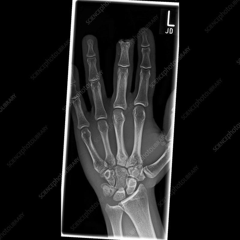 Amputated finger, X-ray
