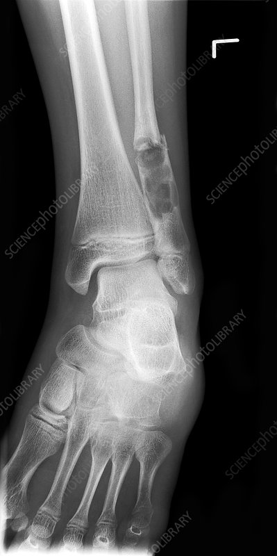 Ankle fracture with bone cyst, X-ray