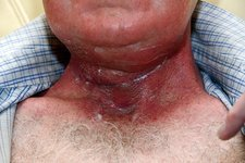 Radiotherapy burn on neck