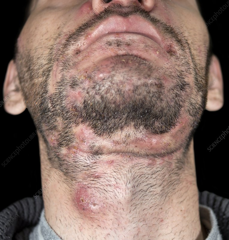 Cystic Acne And Dissecting Folliculitis Stock Image C018