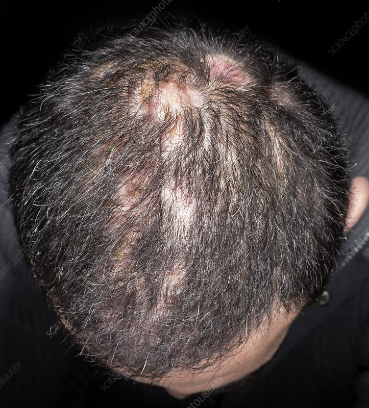 acne adult scalp
