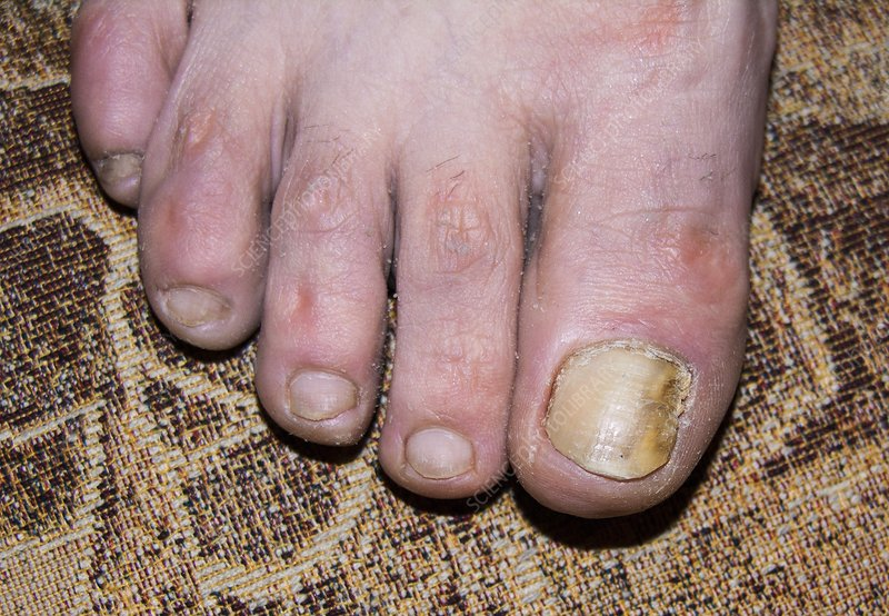 Fungal infection of toenail
