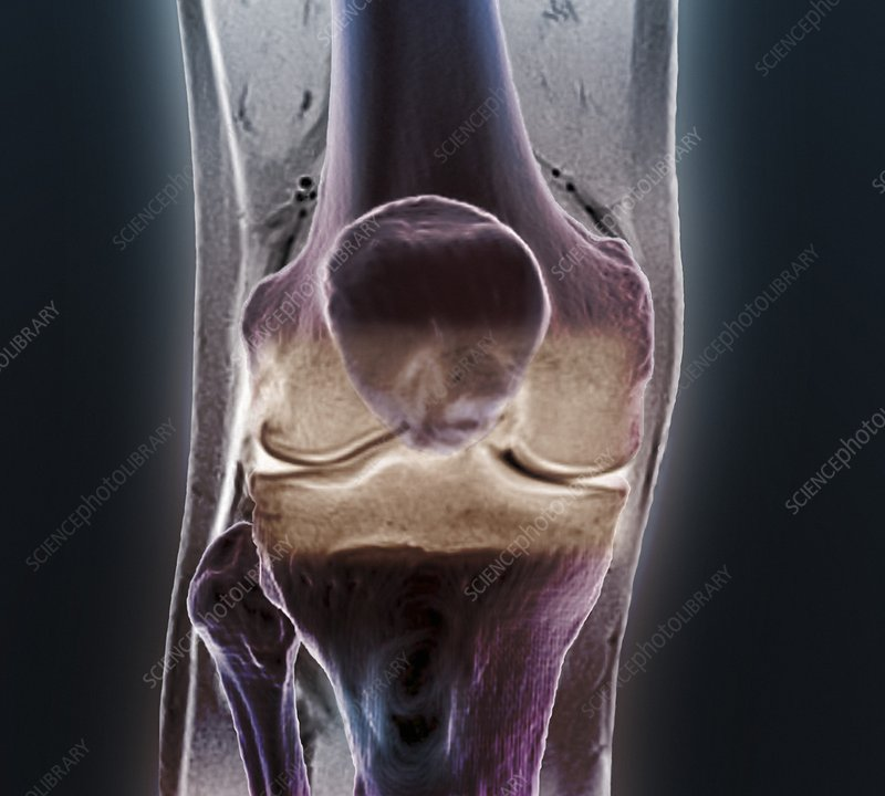 Healthy knee, CT scan