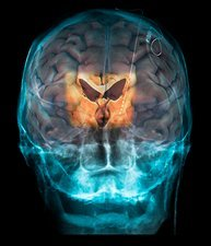 Brain implants for Parkinson's disease