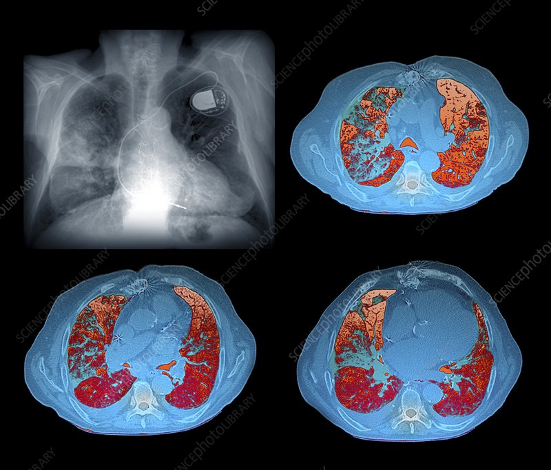 Heart and lung disease, X-rays