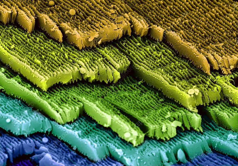 Eye lens layers, SEM