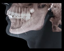 Jaw tumour, CT scan