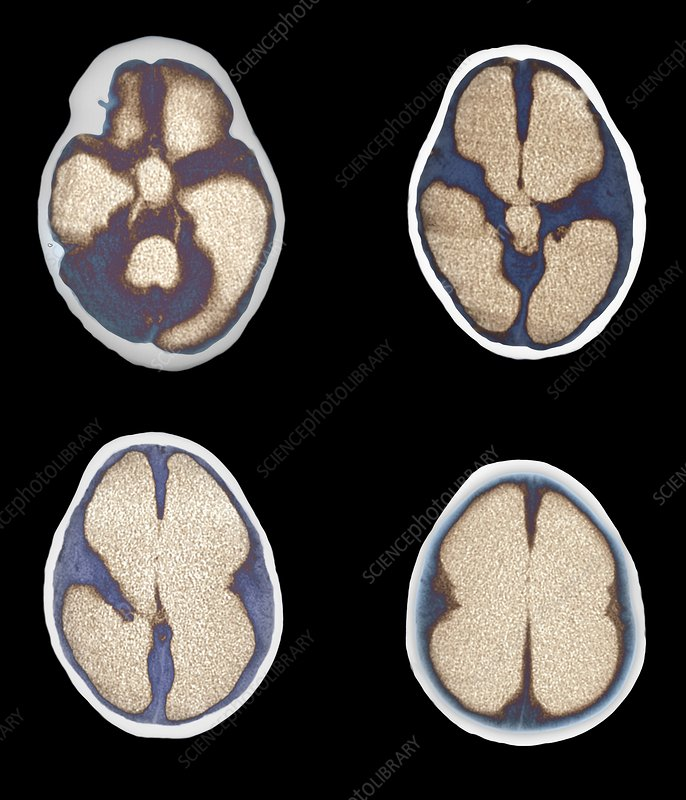 Hydrocephalus, CT scans