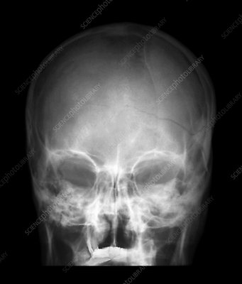Fractured skull, X-ray