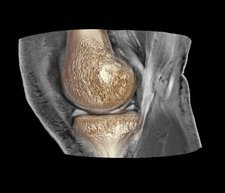 Knee injury, 3D CT scan
