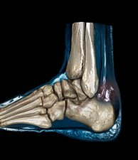Ruptured Achilles tendon, MRI