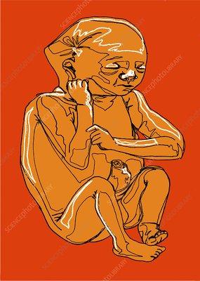 Eight month old female foetus, artwork