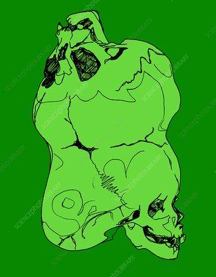 Fused skulls, illustration
