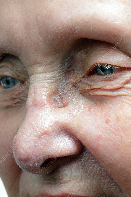 Skin indentation