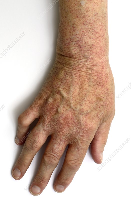 Purpura rash on hand