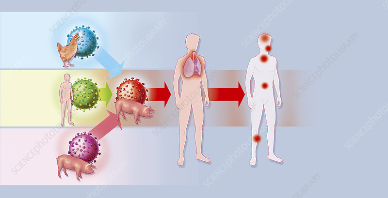 Influenza A H1N1 Infection