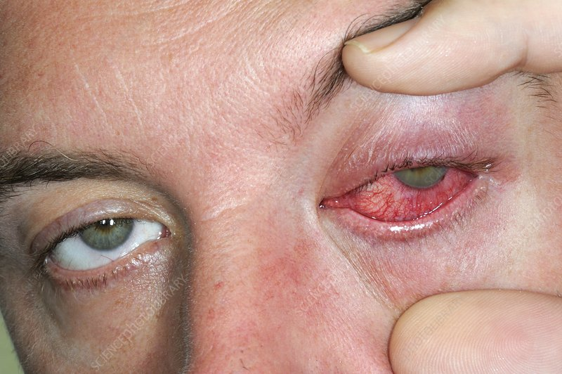 Inflammation of the eye