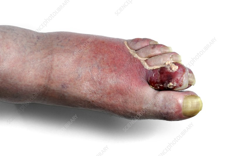 Ulcerated gout
