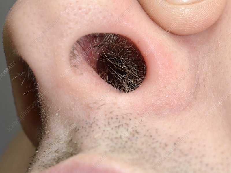 Perforated nasal septum