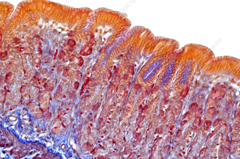 Stomach wall, light micrograph
