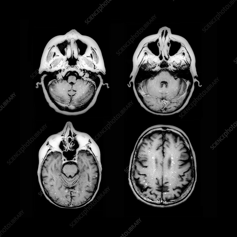 Secondary brain cancer, MRI scans