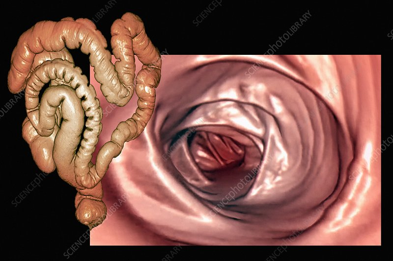 Normal colon, 3D CT scan and endoscopy