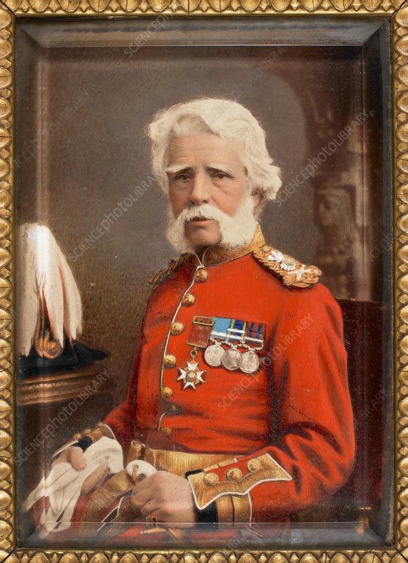 Sir James Abbott - Stock Image - C019/0101 - Science Photo