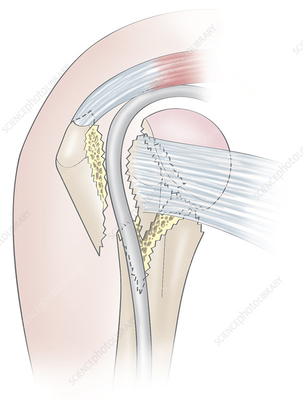 A fractured humeral head - Stock Image C019/1493 - Science Photo Library