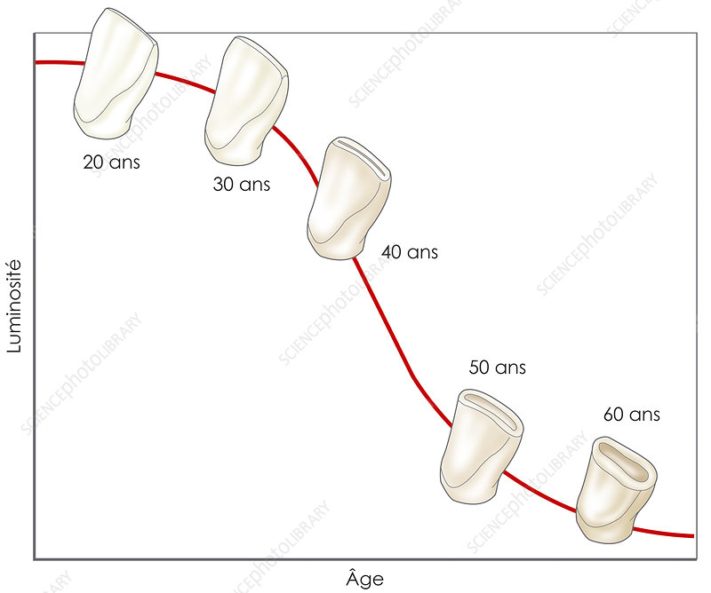 Tooth wear and brightness